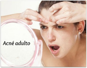 acne-adulto-causas-soluciones